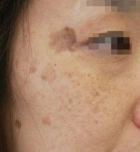 こめかみから頬を中心とした女性の横顔、大小様々なシミがある