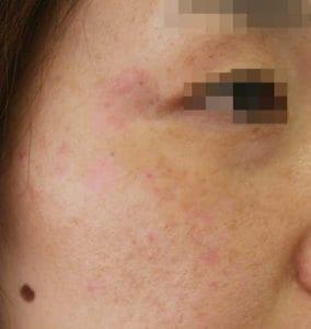 シミ取りレーザー治療後の女性の横顔の写真、シミのあった箇所がピンク色になっている、耳に近い部分はかさぶたが一部残っている
