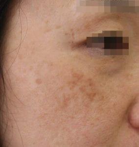 シミ取りレーザー治療から3年が経過した同じ女性の画像、頬にシミが見える